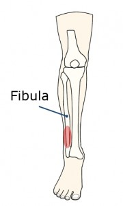 My fracture occurred in the red area in the picture.