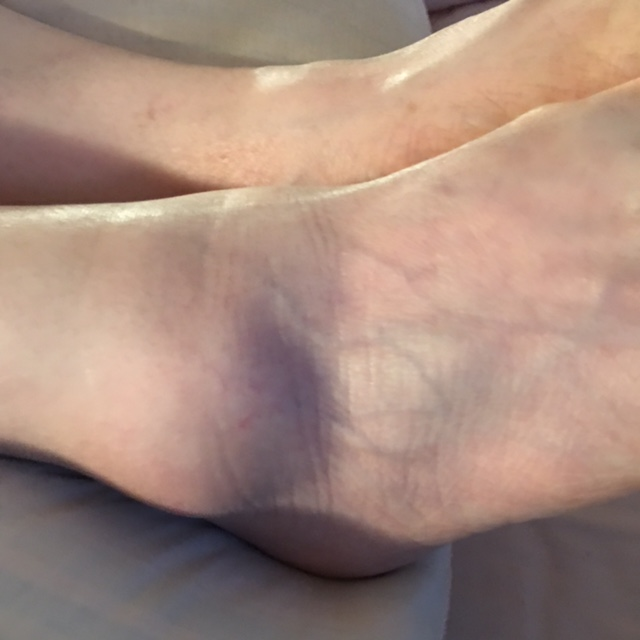 That is a badly swollen ankle.